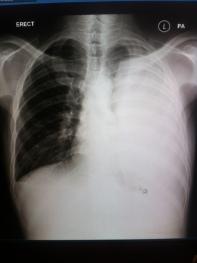links sieht man eine normale gesunde Lunge, die rechte war kaum noch da, von einem riesigen eitrigen Erguss verdrängt...