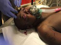 """Dieser Patient war unglaublicherweise noch am Leben und bei Bewusstsein, als er zu uns kam. Er wurde angeschossen, die Kugel ist an der einen Schläfe rein und an der anderen raus. Und hat """"nur"""" die Augen erwischt, nicht das Gehirn."""
